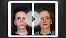 Rhinoplasty Toronto Cost - Nose Job Before and After Photos
